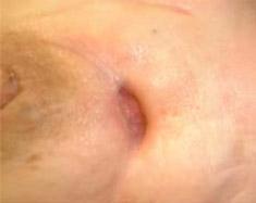 Evolution d'une plaie post radique du sein gauche après 5 mois de traitement O.H.B
